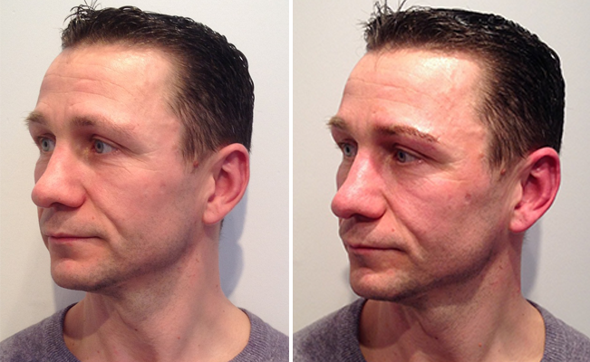 Before and After photo of mens semi-permanent makeup
