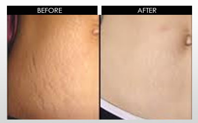 Derma roller and micro needling treatment by pretty for Stretch mark tattoo camouflage