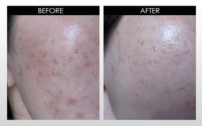 Derma Roller And Micro Needling Treatment By Pretty